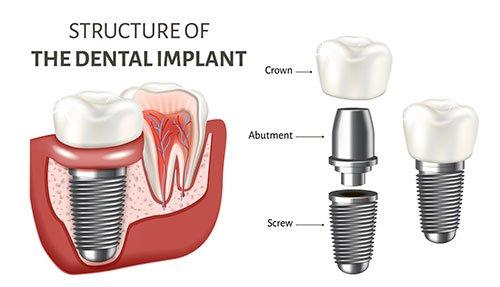 Dental Implant Los Angeles, MD Periodontics