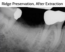 Ridge Preservation After Extraction