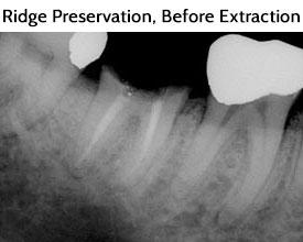 Ridge Preservation Before Extraction