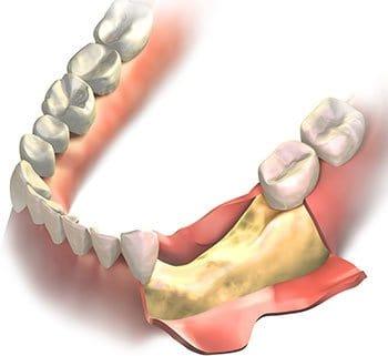 Lower jaw bone graft