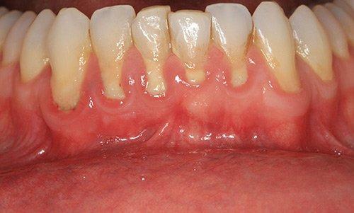 Receding gums from periodontal disease