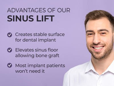 Man smiling next to text. Text reads: Advantages of our Sinus Lift: Creates stable surface for dental implant. Elevates sinus floor allowing bone graft. Most implant patients won't need it.