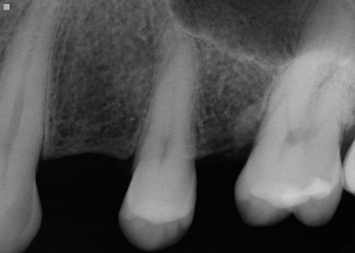 Dental Implant X-Ray, MD Periodontist, Best Periodontist of Los Angeles