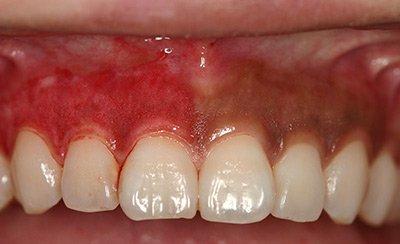 Dark Gums During Treatment