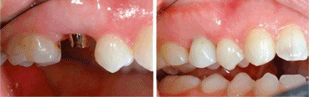 Titanium Dental Implants Before & After, MD Periodontist of Los Angeles