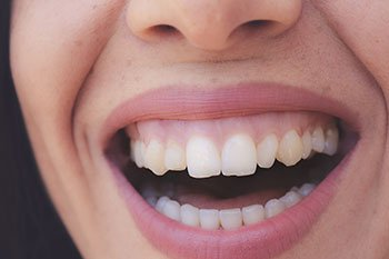 Woman smiling with nice teeth and gums