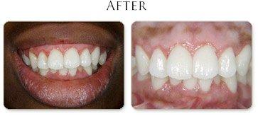 Gummy Smile After