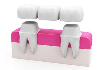 Bridge being placed with crowns over adjacent teeth