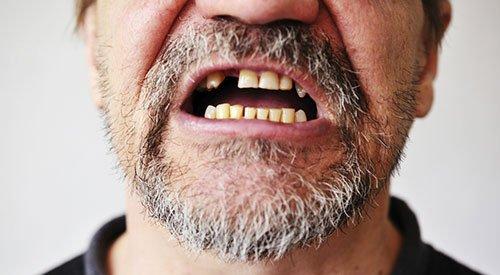 Missing Teeth Dental Implants