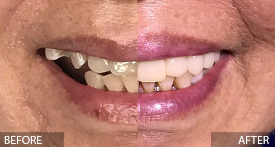 All on X Implants Before & After