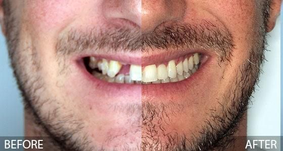 Ceramic Dental Implant Before & After