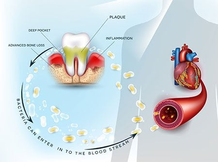 Diagram of oral bacteria entering the bloodstream