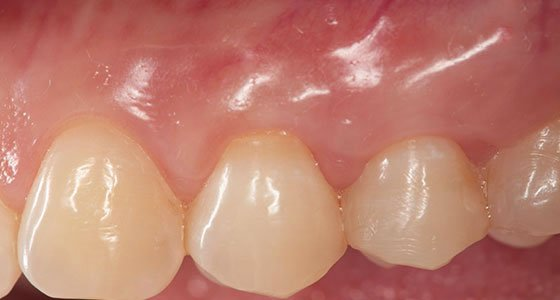 Gum Graft Before & After