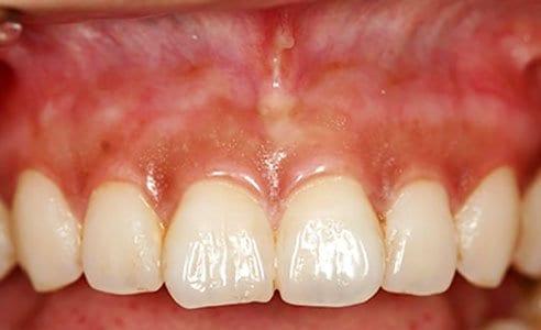 Gum Lightening Before & After