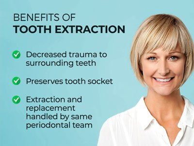 """Image of smiling woman next to text. Text reads: """"Benefits of Tooth Extraction. Decreased trauma to surrounding teeth. Preserves tooth sockets. Extraction and replacement handled by same periodontal team."""