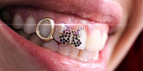 Women-with-MD-Periodontics-Dental-Grillz-flare-ft