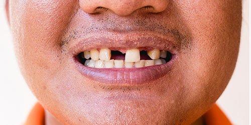 Dental Implant vs Dental Partials