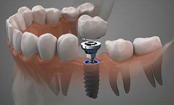 3-D model of a titanium dental implant
